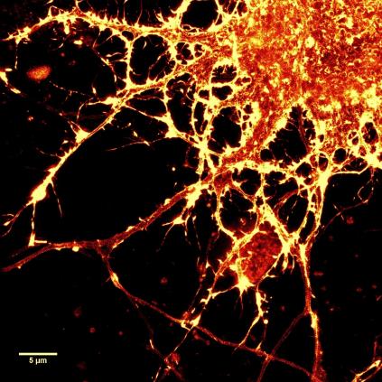 SiR-Actin染色的神经元.png